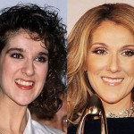 celine-dion-teeth