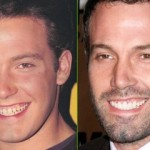 Ben-Affleck-teeth-before-after-cosmetic-dentistry