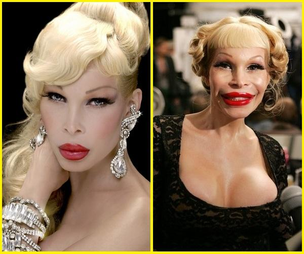 Image result for Amanda Lepore before and after plastic surgery