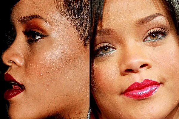 9 Celebrities Who Suffer From Really Bad Acne Tomorrowoman