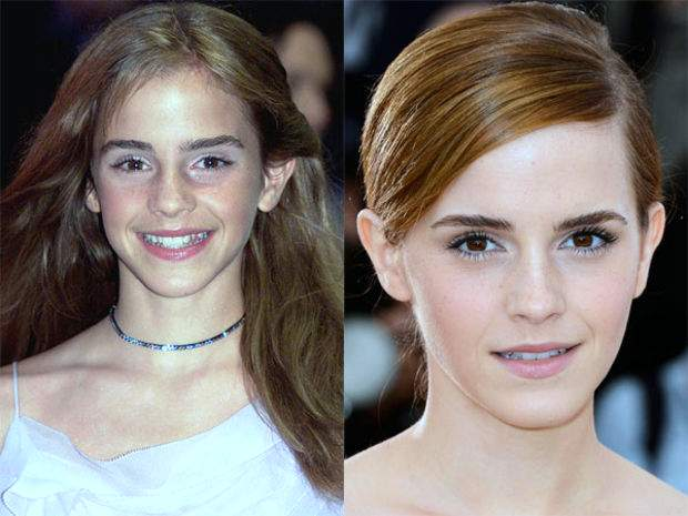 20 Celebs Before And After Nose Jobs Tomorrowoman